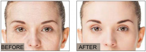 Reduces and fades wrinkles in 1 to 7 days