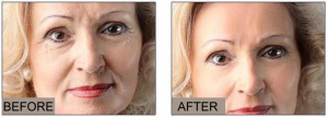 Facial lines become lighter after 16 to 28 days